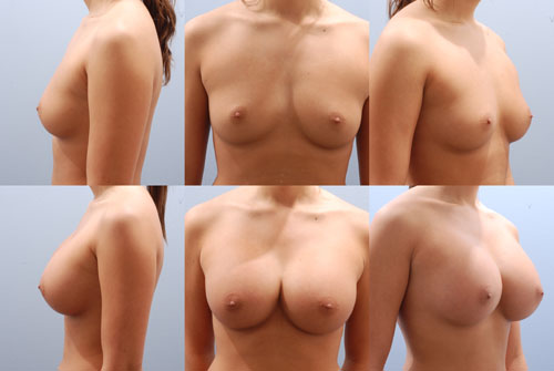 Opinion you breast augumentation b cup pity